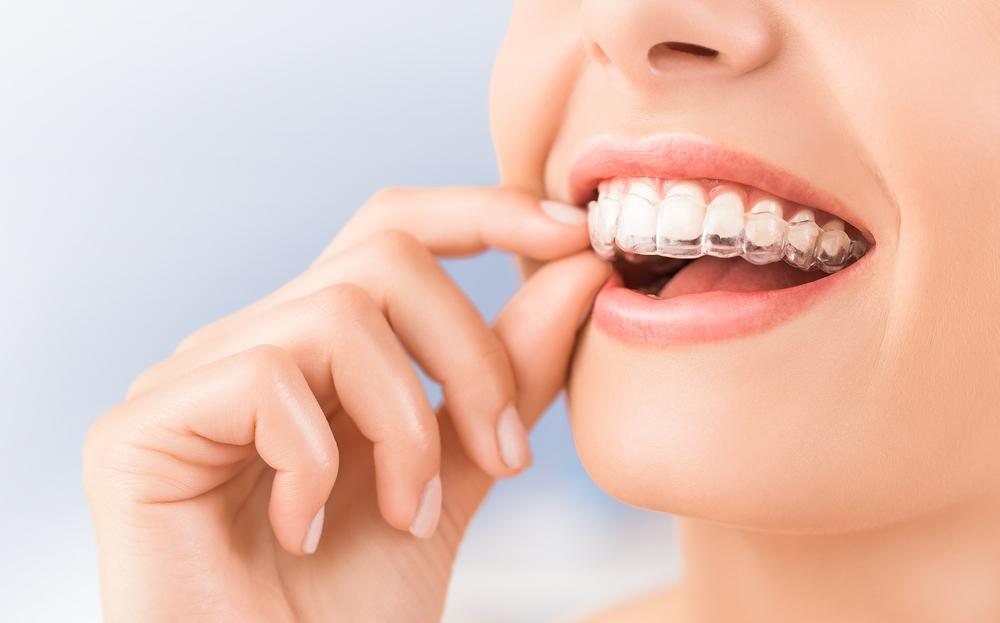 Descubre las ventajas de la ortodoncia invisible